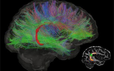 La musica ti cambia il cervello